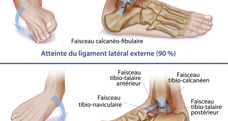 L'ostéopathie est-elle efficace pour les entorses de la cheville ?
